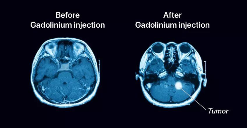 Comparison of MRI before